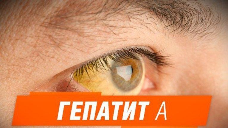 Вірусний гепатит А «вирує» на Полтавщині
