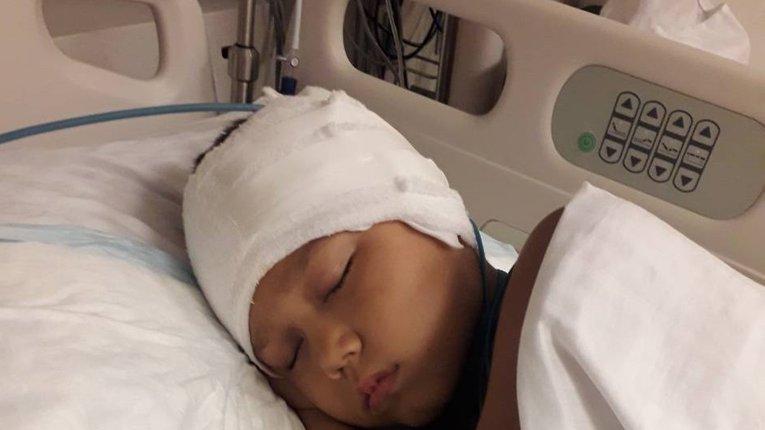 8-річному Артему Прохорову з Полтави провели вдалу операцію з видалення пухлини мозку