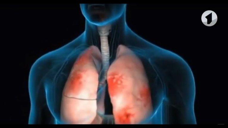 У Кременчуці 76 людей лікують від пневмонії