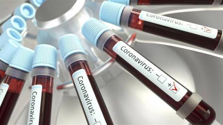 На Полтавщині двоє хворих на коронавірус