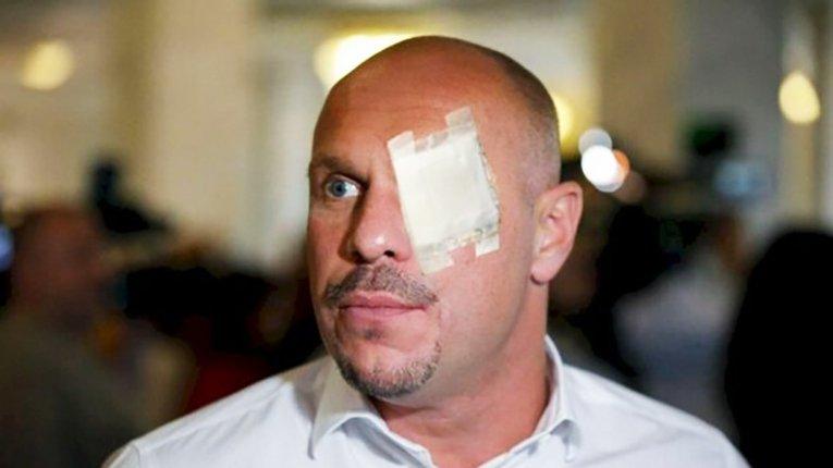 Аваков звітує про затримання підпалювача авто журналістів. Коли дійде черга до Киви?