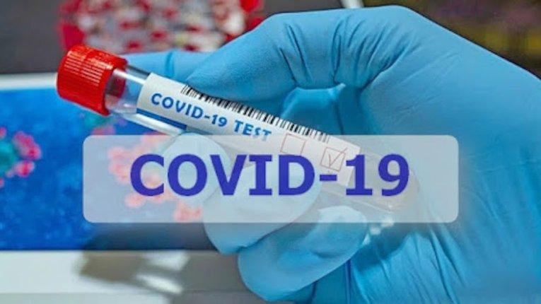За минулу добу в Україні зареєстровано 508 нових випадки захворювання на Covid-19