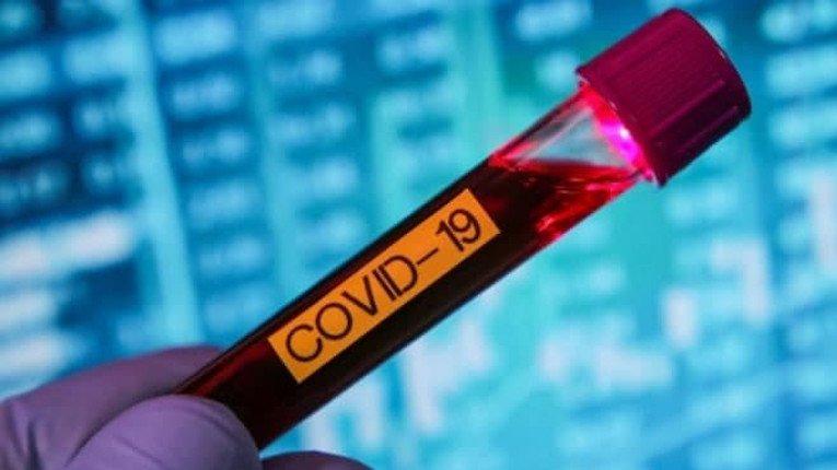 984 нових випадки COVID-19 зафіксовано в Україні